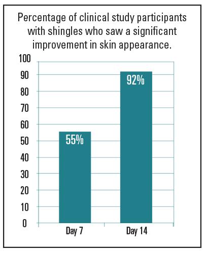 Shingles Chart